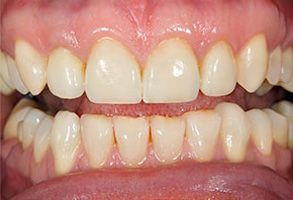 The Villages Before and After Teeth Whitening