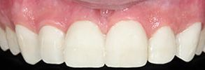 32162 Before and After Teeth Whitening